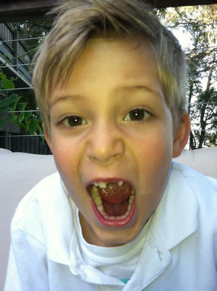 Lost-Tooth-Jamie
